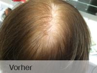 thumbs_hairwear-vorher-von-hinten